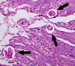 Sheep abomasum containing encysted L4 of Trichostronglus axei. Source: www.vet-parasitology.com/strongyloida.php
