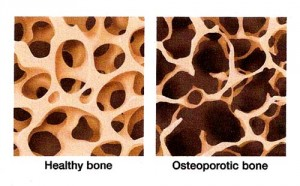 Osteroporosis versus normal bone matrix